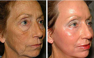 The truth on chemical peels